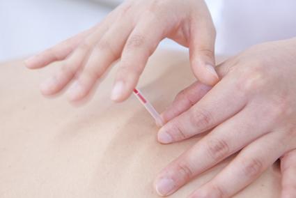骨盤のゆがみに適したツボへ指圧・鍼灸施術を行います。
